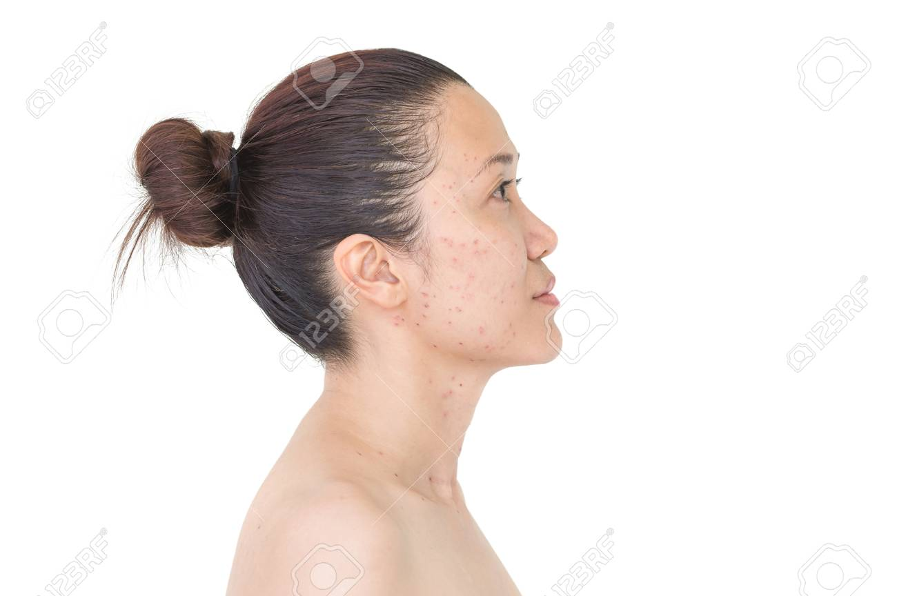 Burn spots or Scabs from laser treatment acne skin, freckles,
