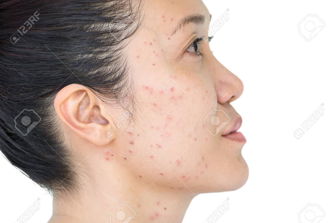 Burn spots or Scabs from laser treatment acne skin, freckles, freckles and  dark spots on the face and neck of Asian women