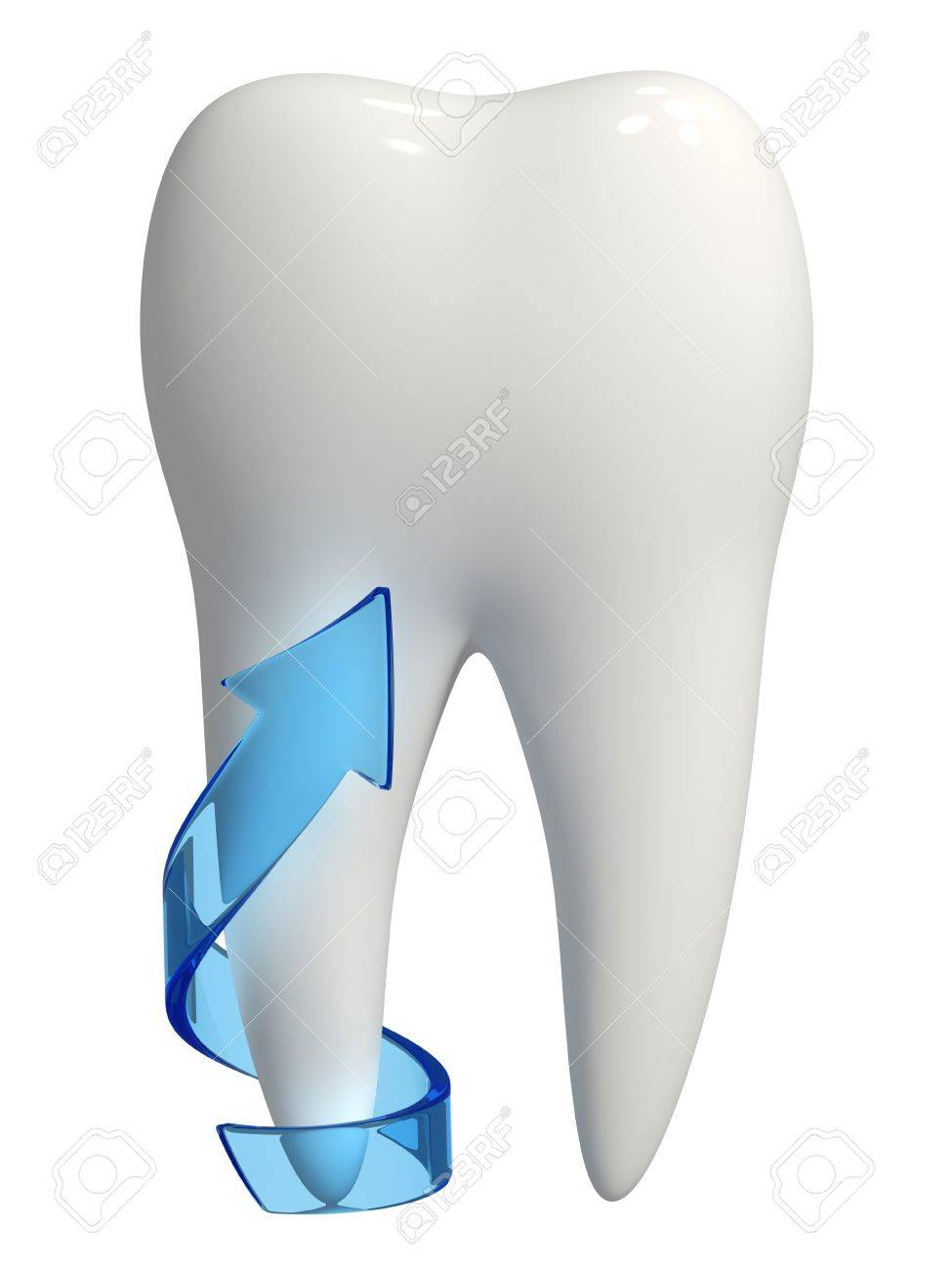 3d rendered photo-realistic white tooth with a blue semi-transparent arrow on one root pointing upward - Isolated Stock Photo - 11035942