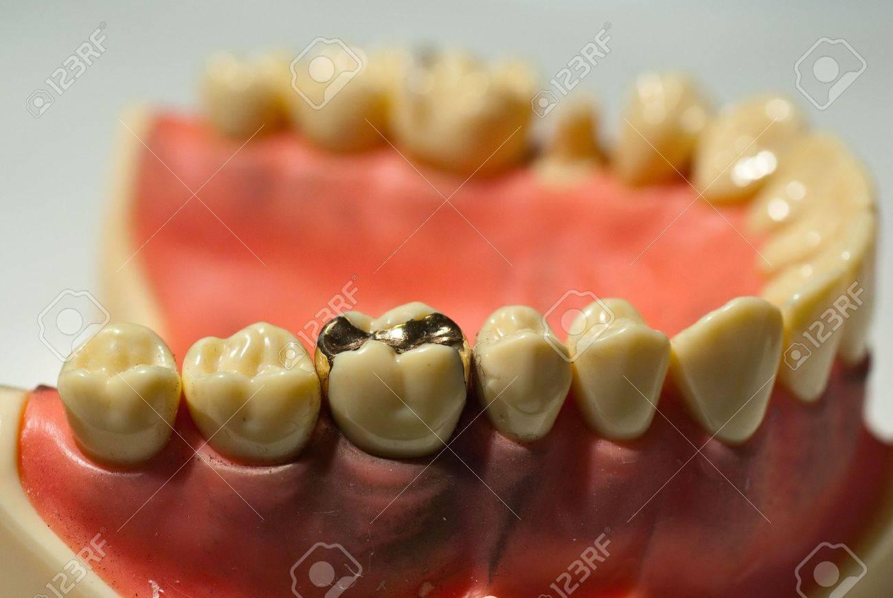 Shiny smooth golden dental inlay Stock Photo - 6507929