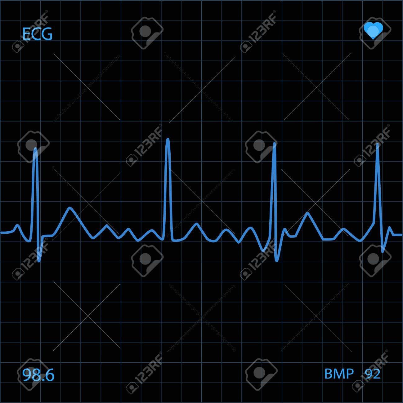 Heart Monitor Stock Photo - 6851893