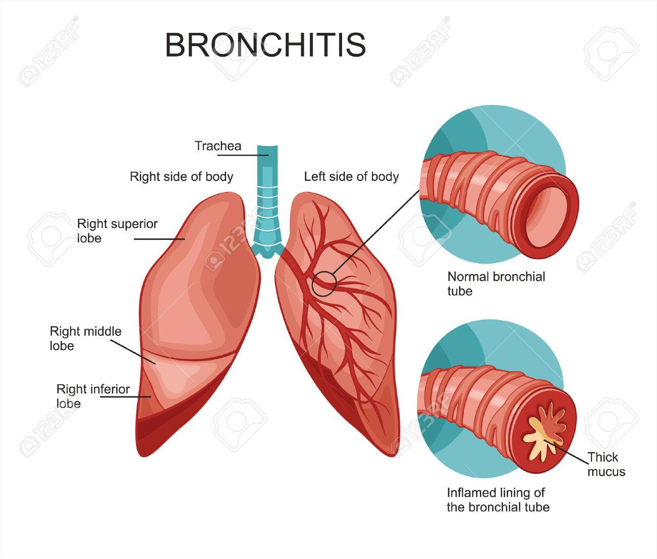 Diagram of the human lungs bronchitis royalty free cliparts diagram of the human lungs bronchitis stock vector 59396685 ccuart Images
