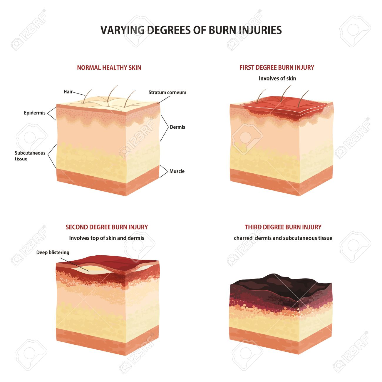 Skin burn classification. First, second and third degree skin burns - 59396709