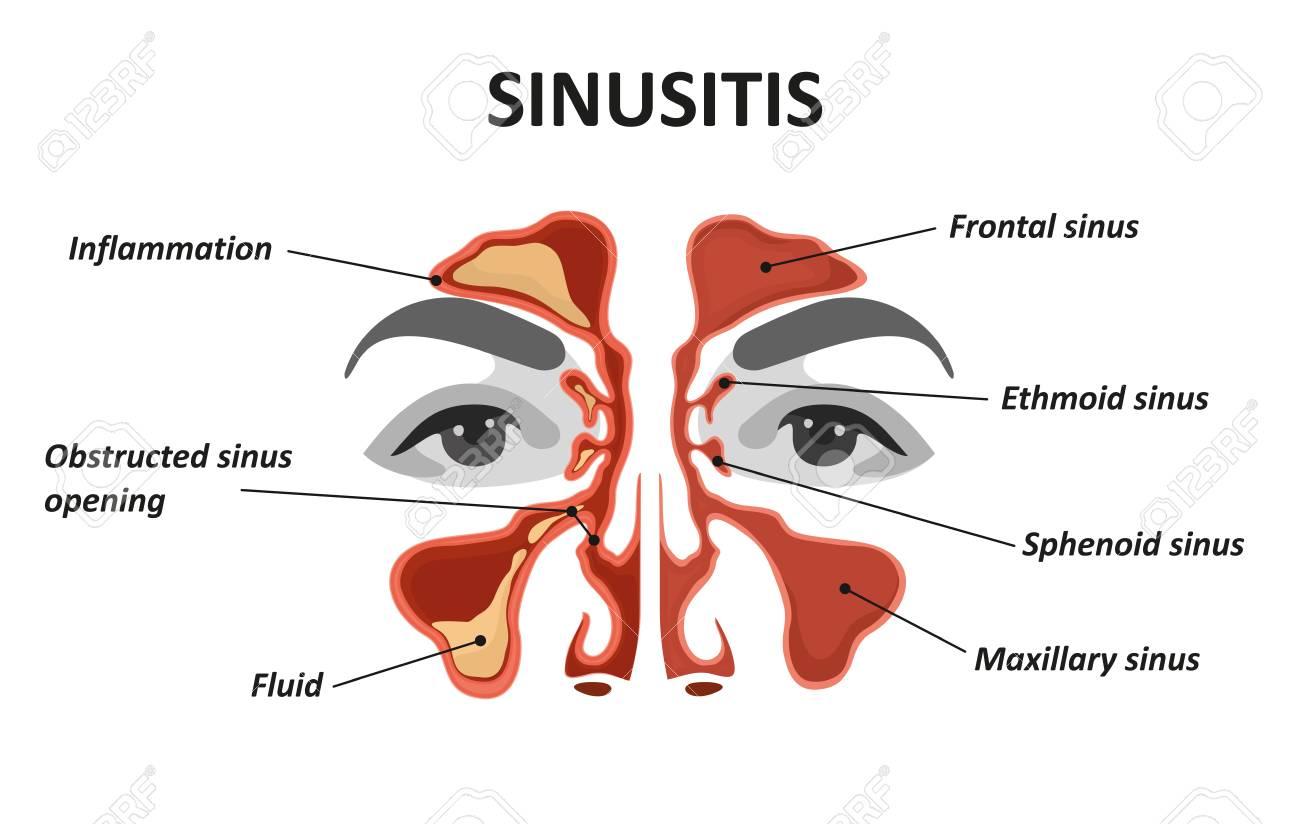 Sinusitis. Healthy and inflammation nasal sinus - 109903344