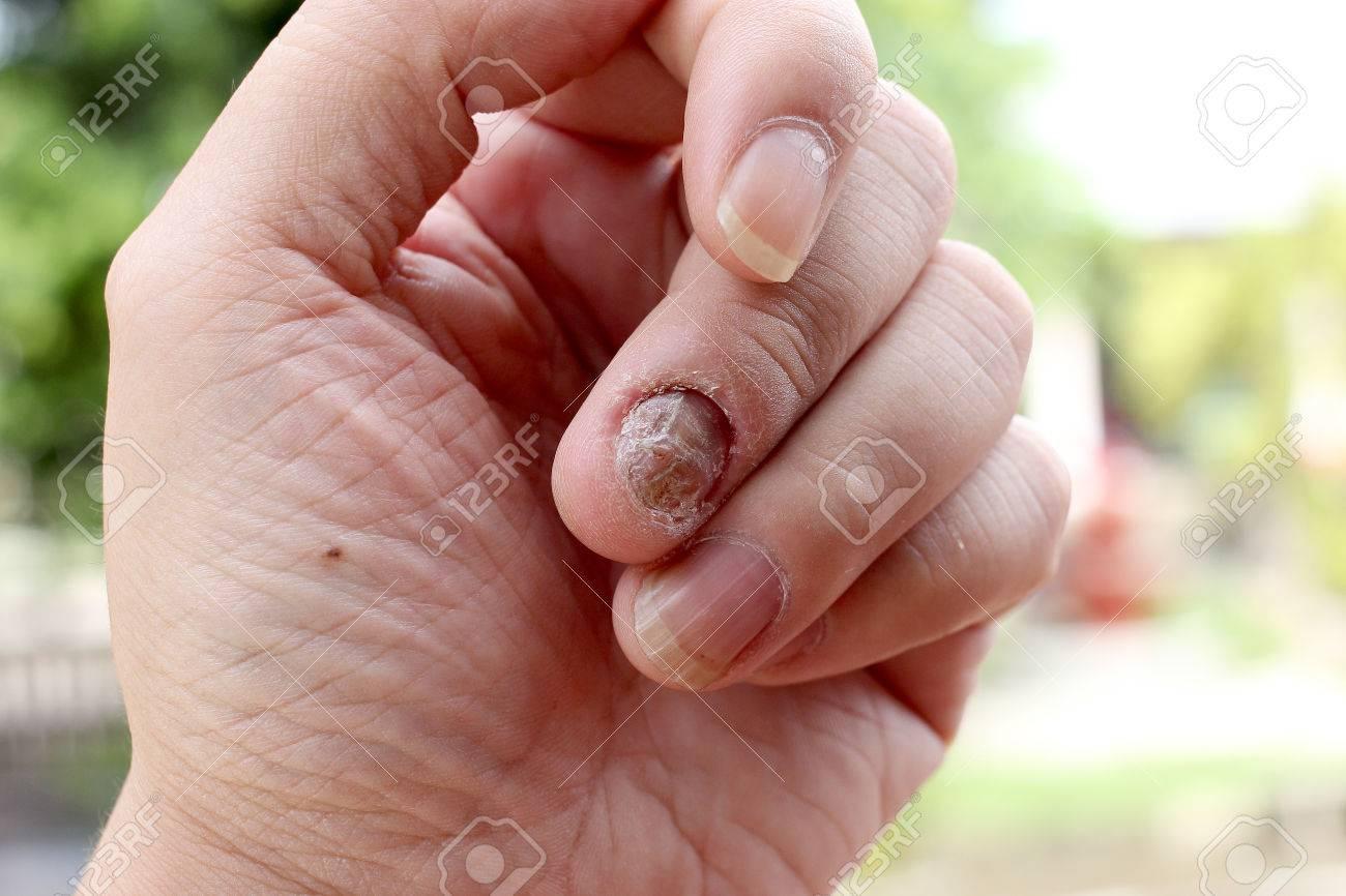 La Infección De Hongos En Las Uñas De La Mano, Los Dedos Con ...