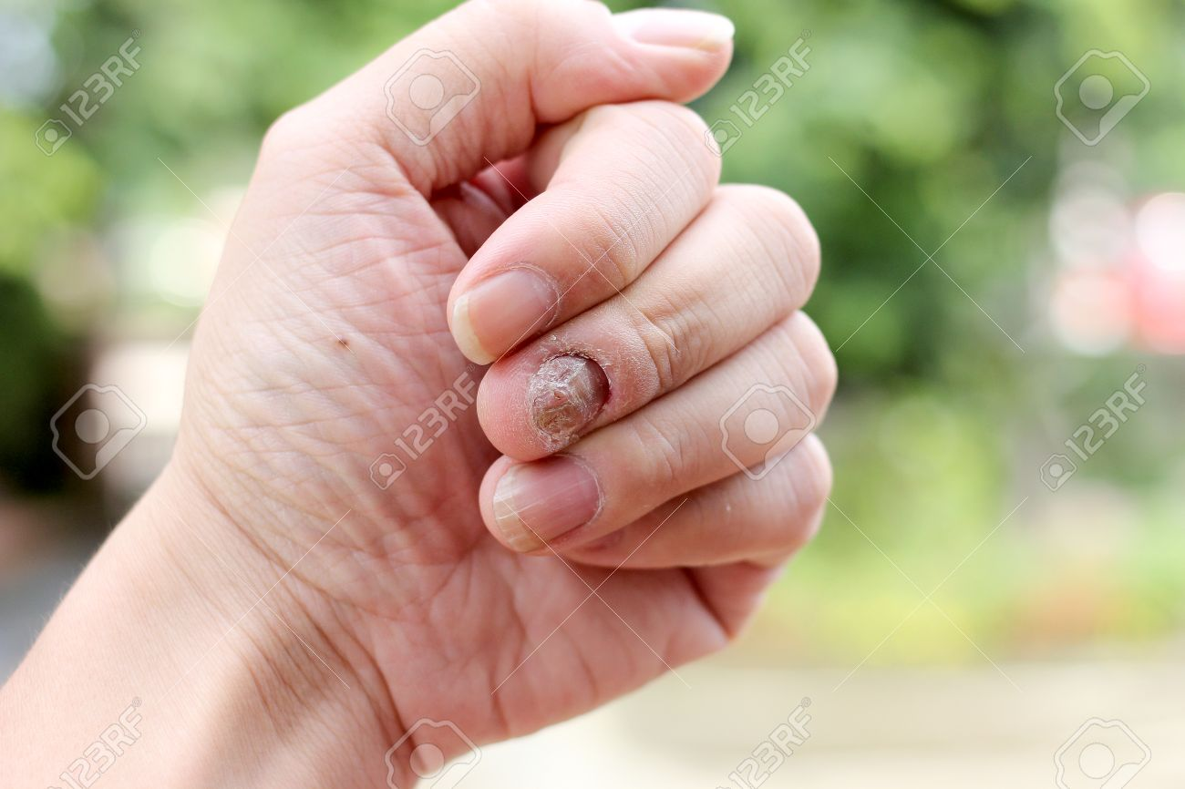 Fungus Infection On Nails Hand, Finger With Onychomycosis, A.. Stock ...