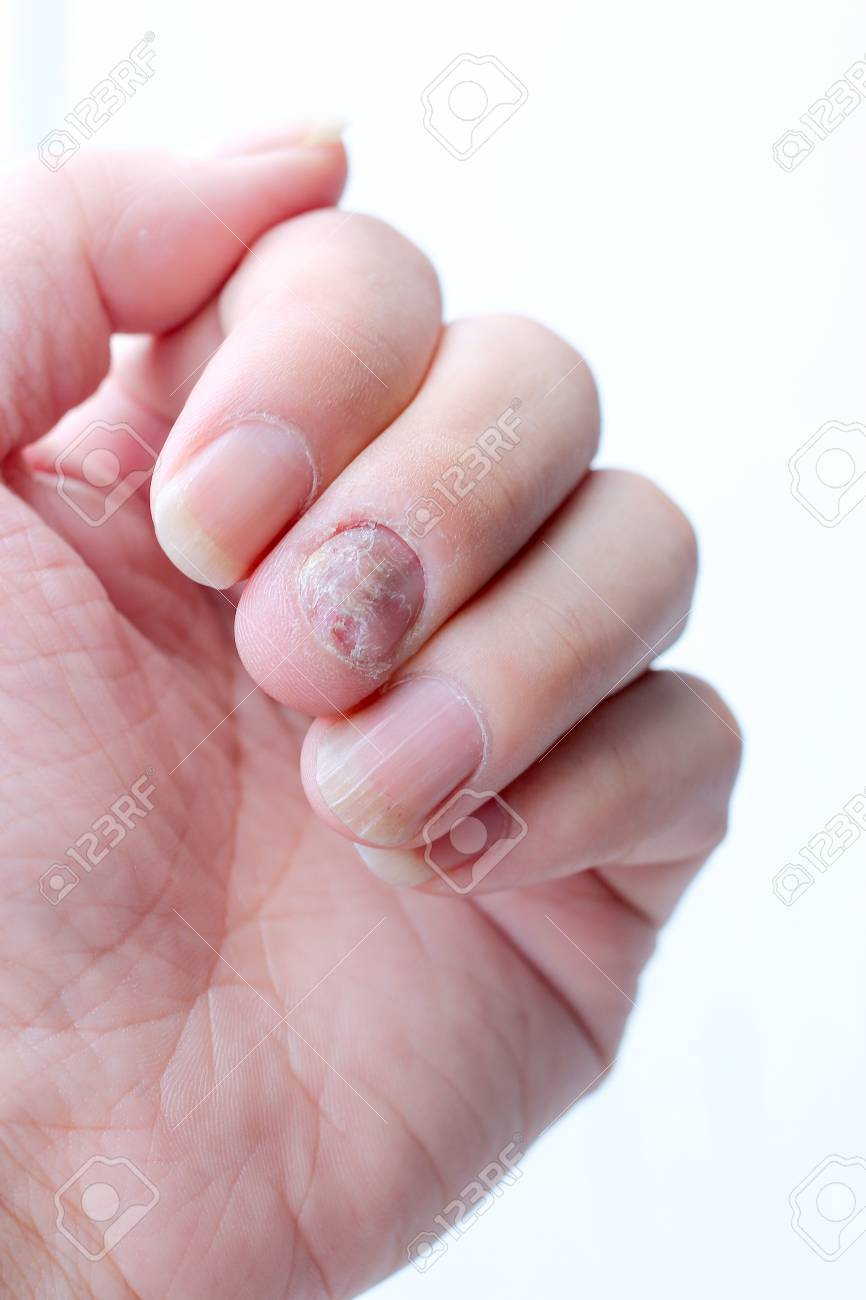 Fungus Infection On Nails Hand, Finger With Onychomycosis. -.. Stock ...