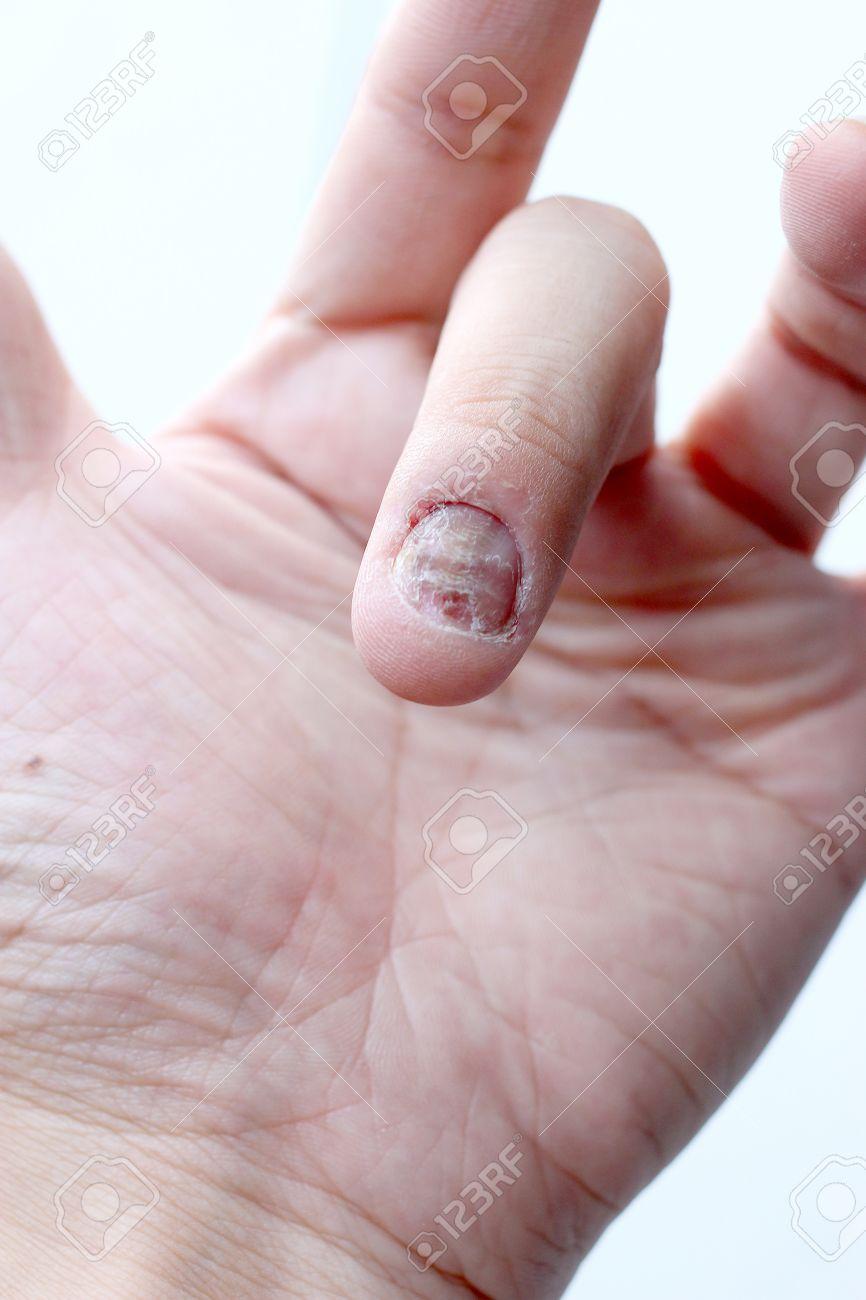 La Infección De Hongos En Las Uñas De La Mano, Los Dedos Con La ...