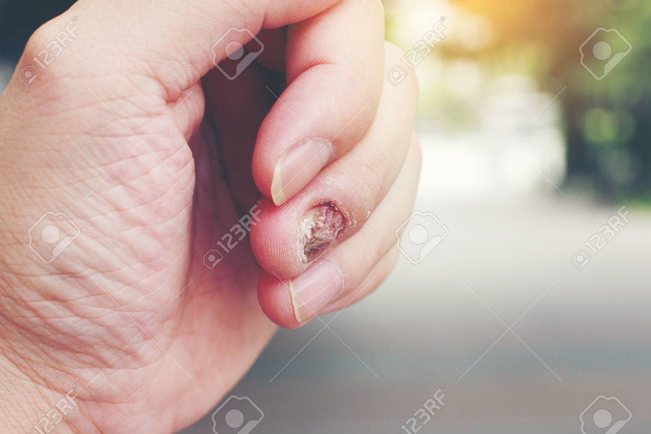Fungal Nail Infection And Damage On Human Hand. Finger With ...