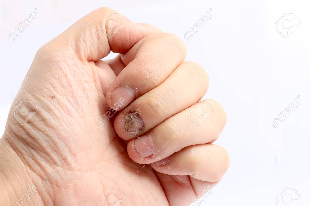 Fungus Infection On Nails Hand, Finger With Onychomycosis, Fungal ...