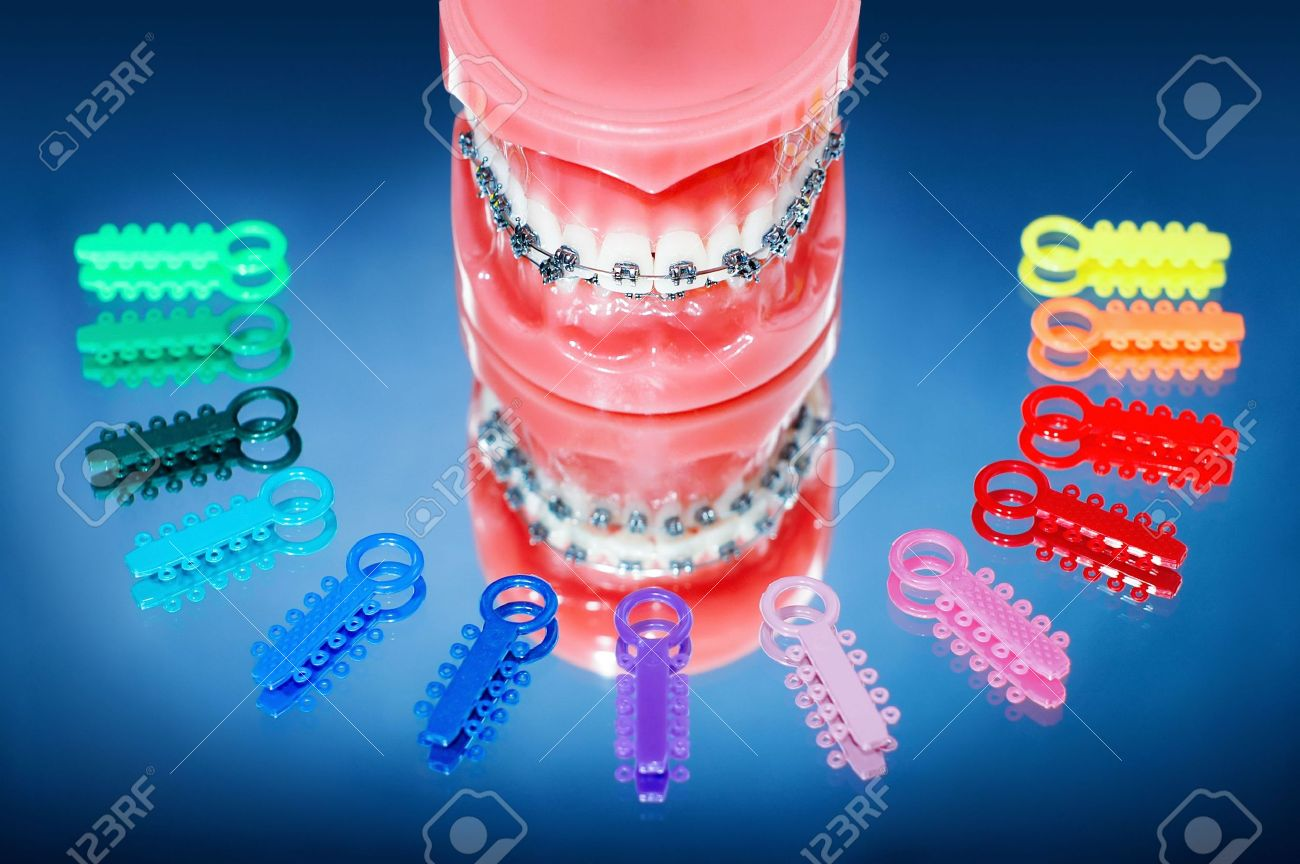 Dentures with braces surrounded by multicolored ligature ties Stock Photo - 7044384