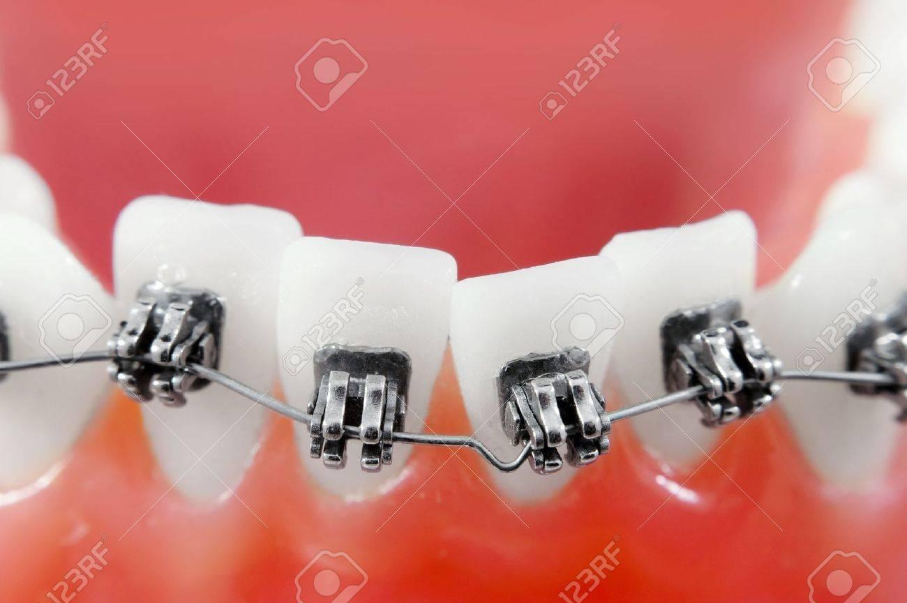 Les accolades dentaires super macro, Dents désalignées, faible profondeur de champ Banque d'images - 8755368