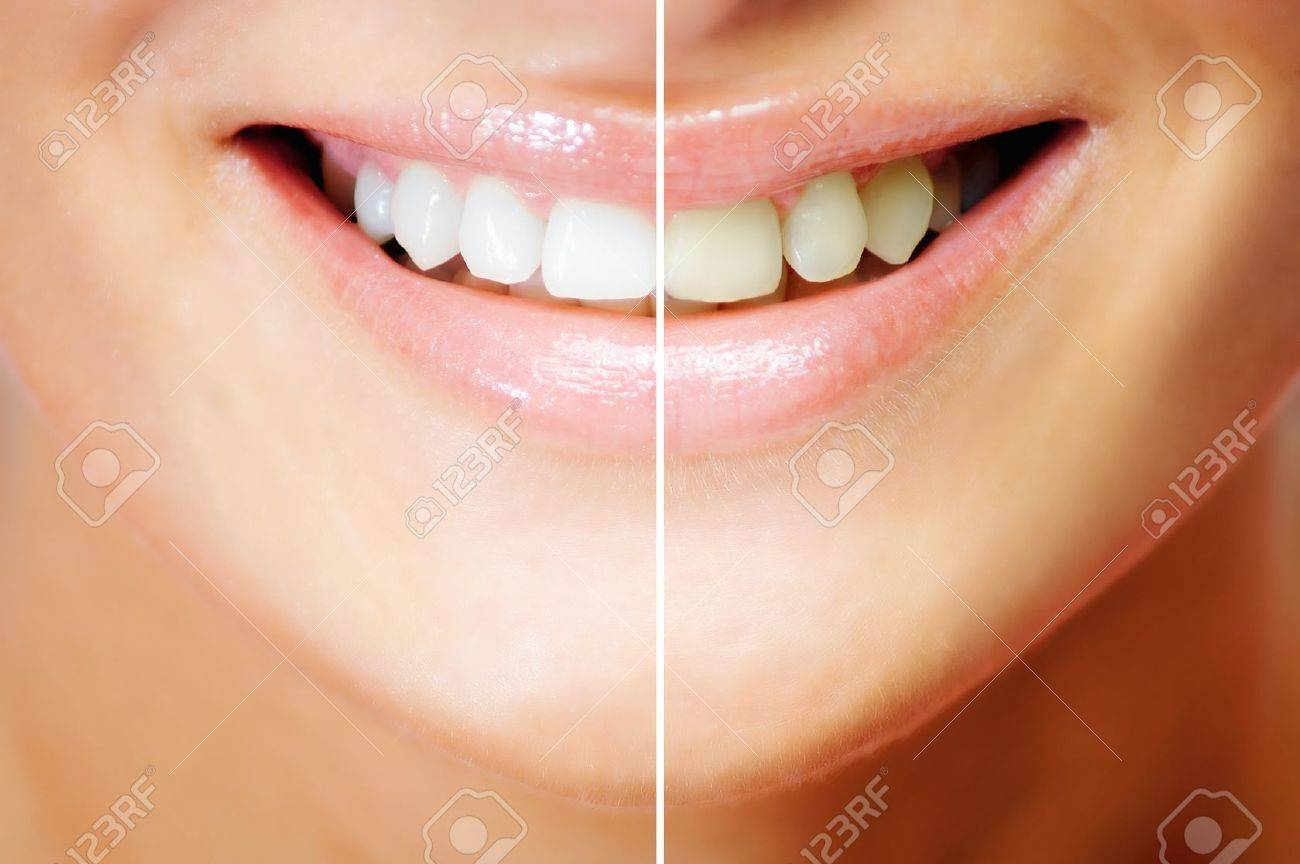 Teeth whitening , before and after comparison Standard-Bild - 9584039