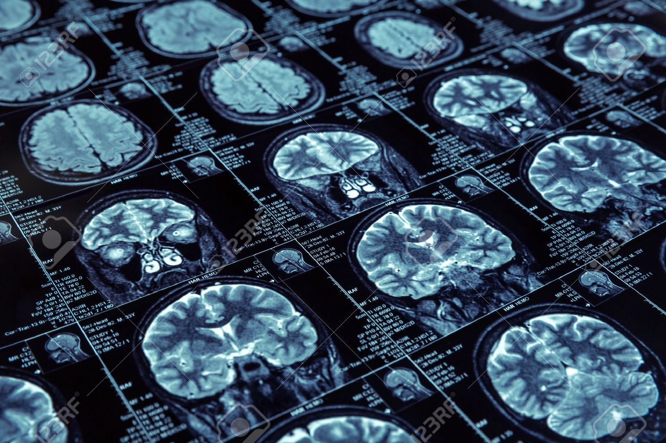 Closeup of X-ray photography of human brain - 55007795