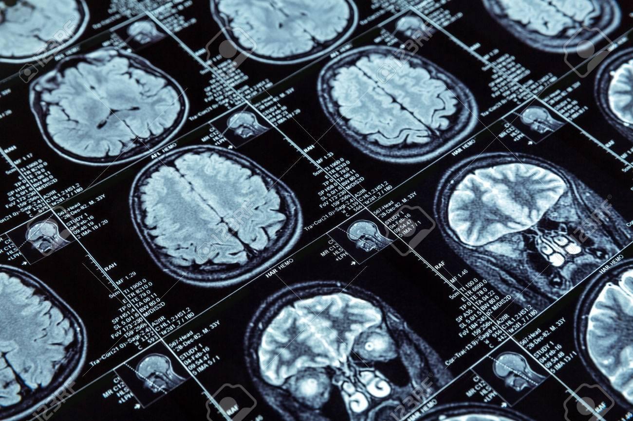 Closeup of magnetic resonance imaging photography of human brain - 56351954