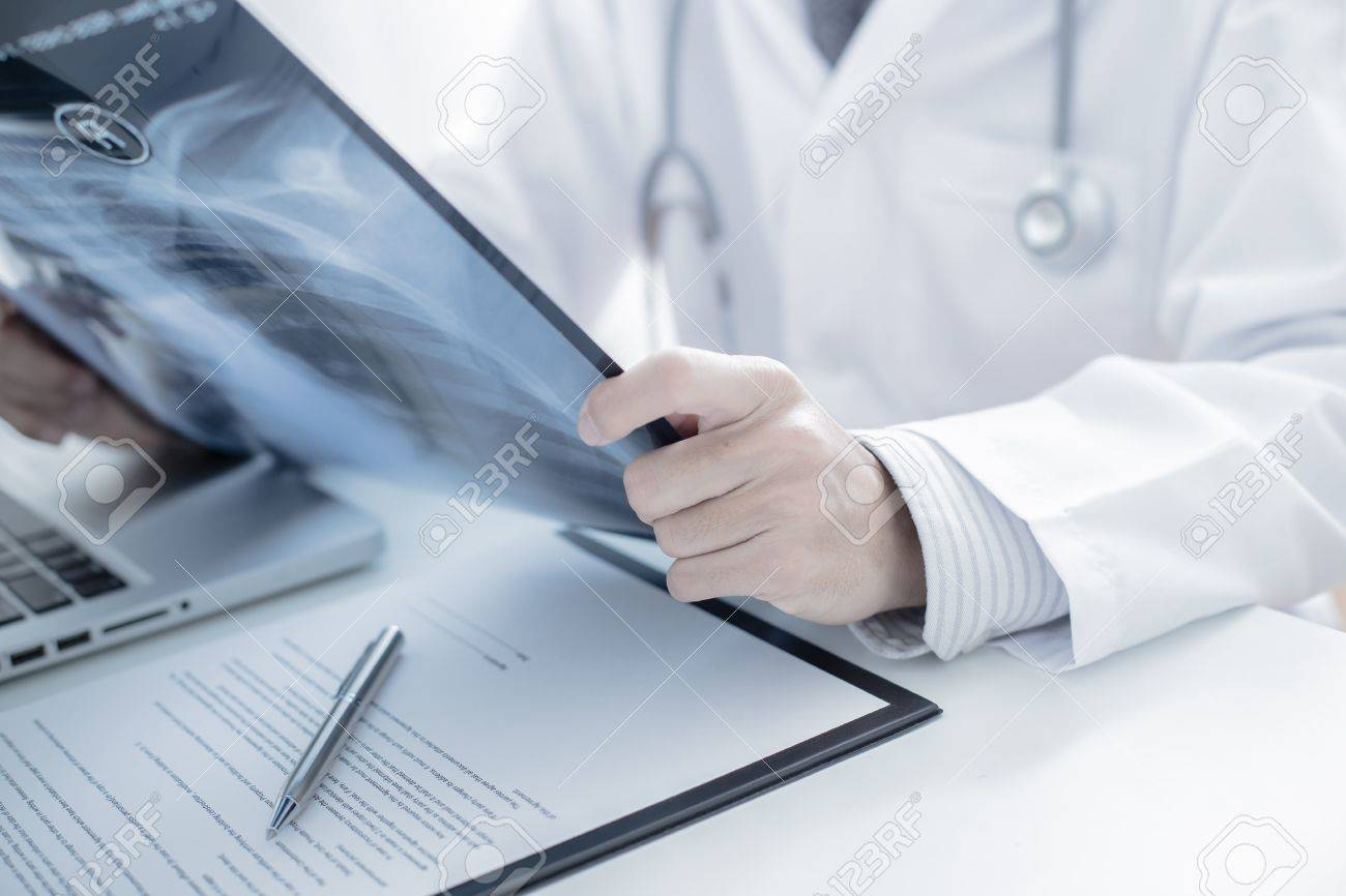 close up of male doctor holding x-ray or roentgen image Stock Photo - 36918372