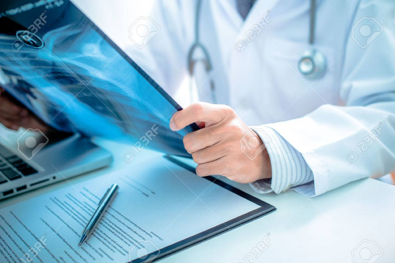 close up of male doctor holding x-ray or roentgen image Stock Photo - 37317564