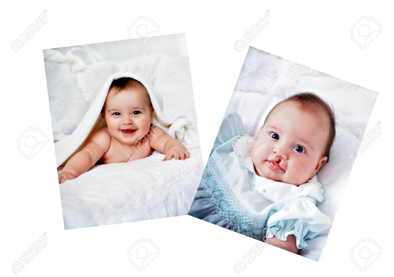 Pictures In A Photo Album Of A Baby Who Had Surgery For A Cleft ...