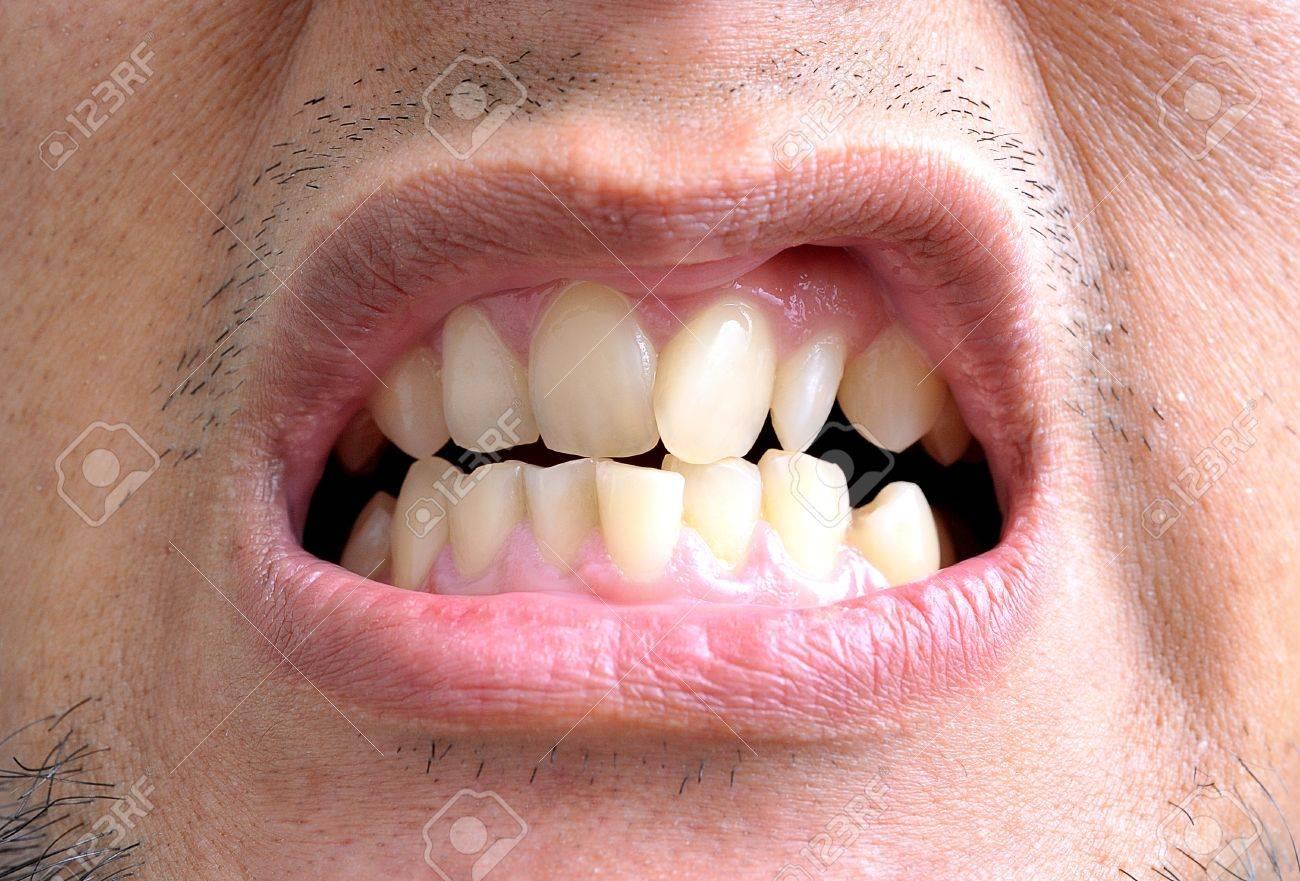 Как сделать зубы кривыми