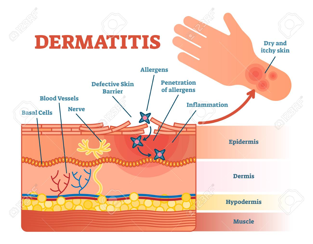 dermatitis flat vector illustration diagram with skin layers and allergen  movement  educational medical information