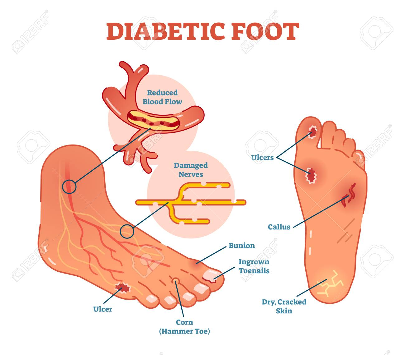 Diabetic foot medical vector illustration scheme with common foot conditions. - 94739246