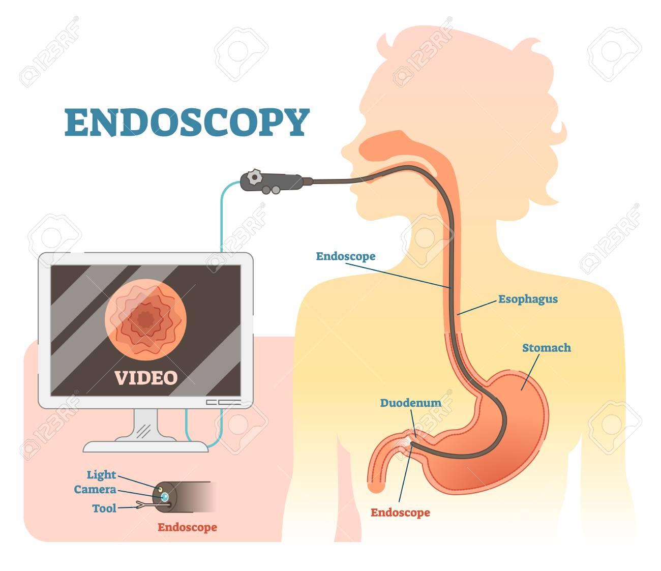 endoscopy anatomical vector illustration diagram, medical scheme