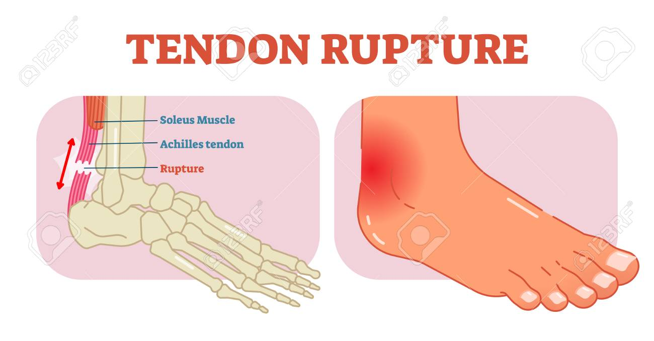 Tendon Rupture Anatomical Example, Vector Illustration Diagram ...