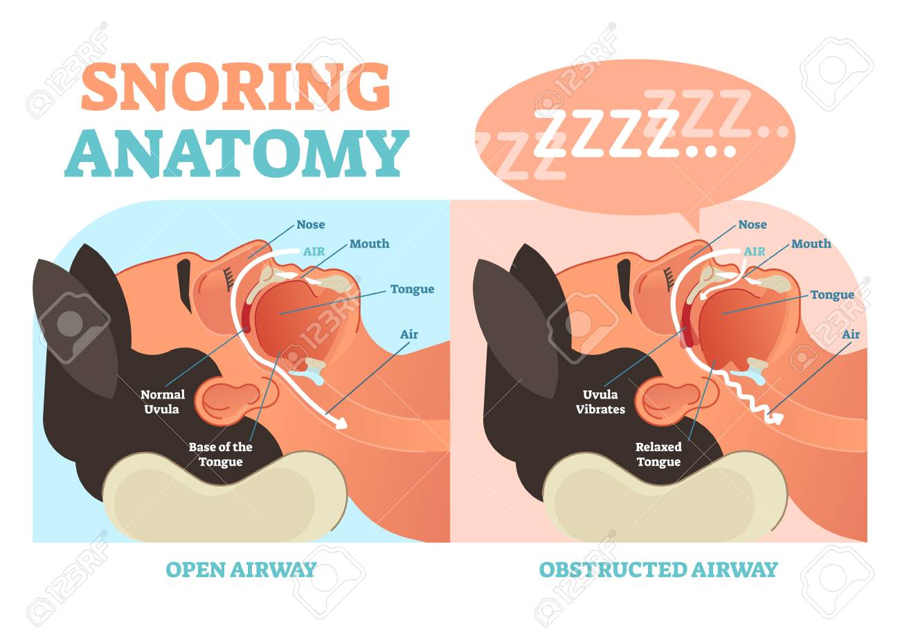 Snoring Anatomy Medical Vector Diagram With Nose, Mouth, Tongue ...