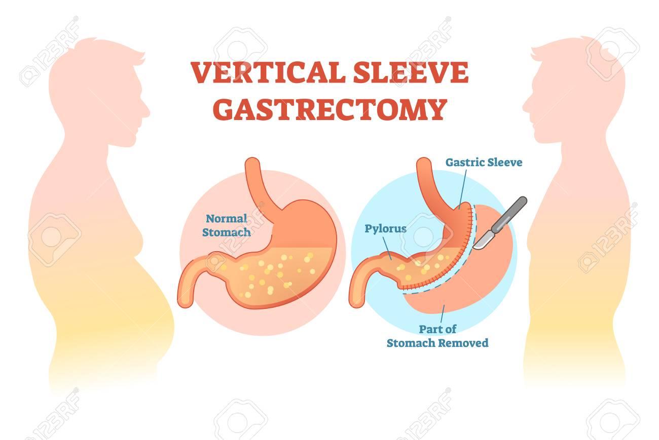 Vertical Sleeve Gastrectomy Medical Vector Illustration Diagram ...