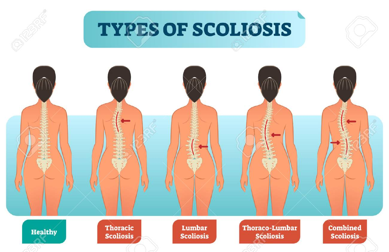 Types of scoliosis medical anatomical vector illustration diagram with spine curvatures compared with healthy back bone. Back view female with labels. - 100585862