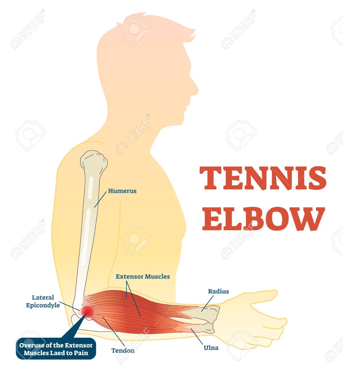 Tennis Elbow Medical Fitness Anatomy Vector Illustration Diagram ...
