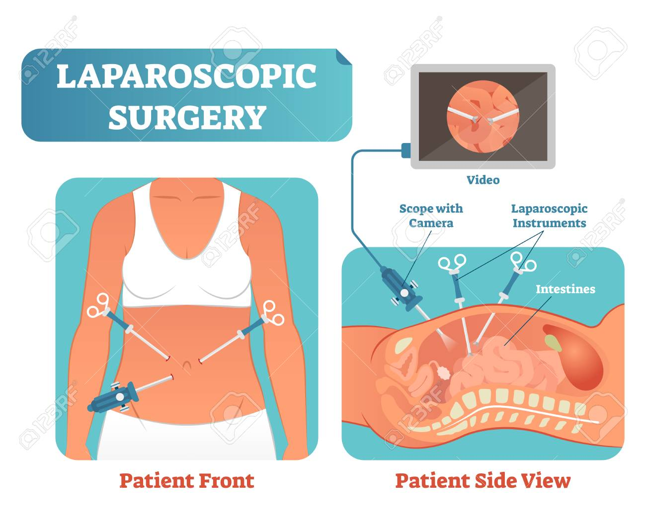 Laparoscopic surgery medical health care surgical procedure process, anatomical cross section vector illustration diagram. Laparoscopy instruments with camera and screen. - 101059224
