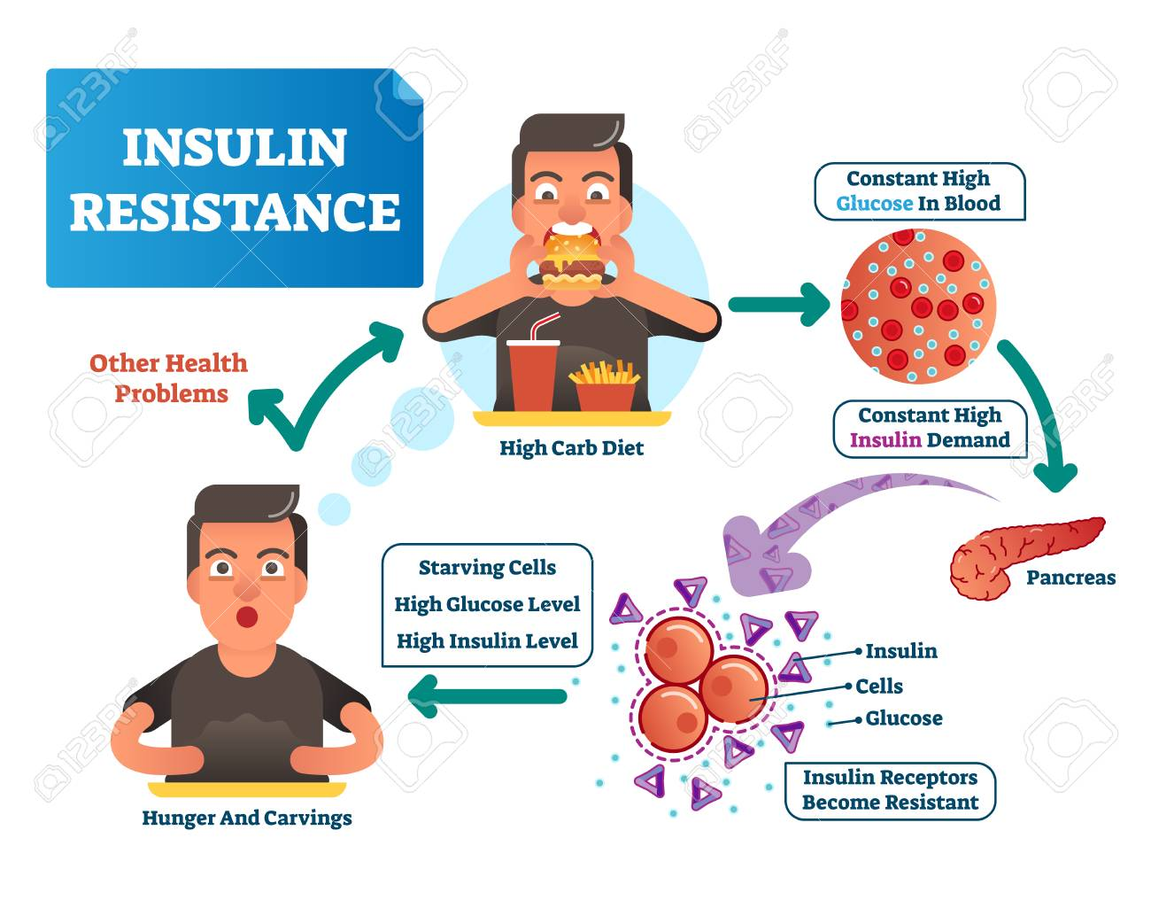 Insulin resistance vector illustration. Labeled scheme with all cycle of process. High glucose in blood, constant demand. Medical diagram how reporters become resistant, hunger, carvings and carb diet - 106379431