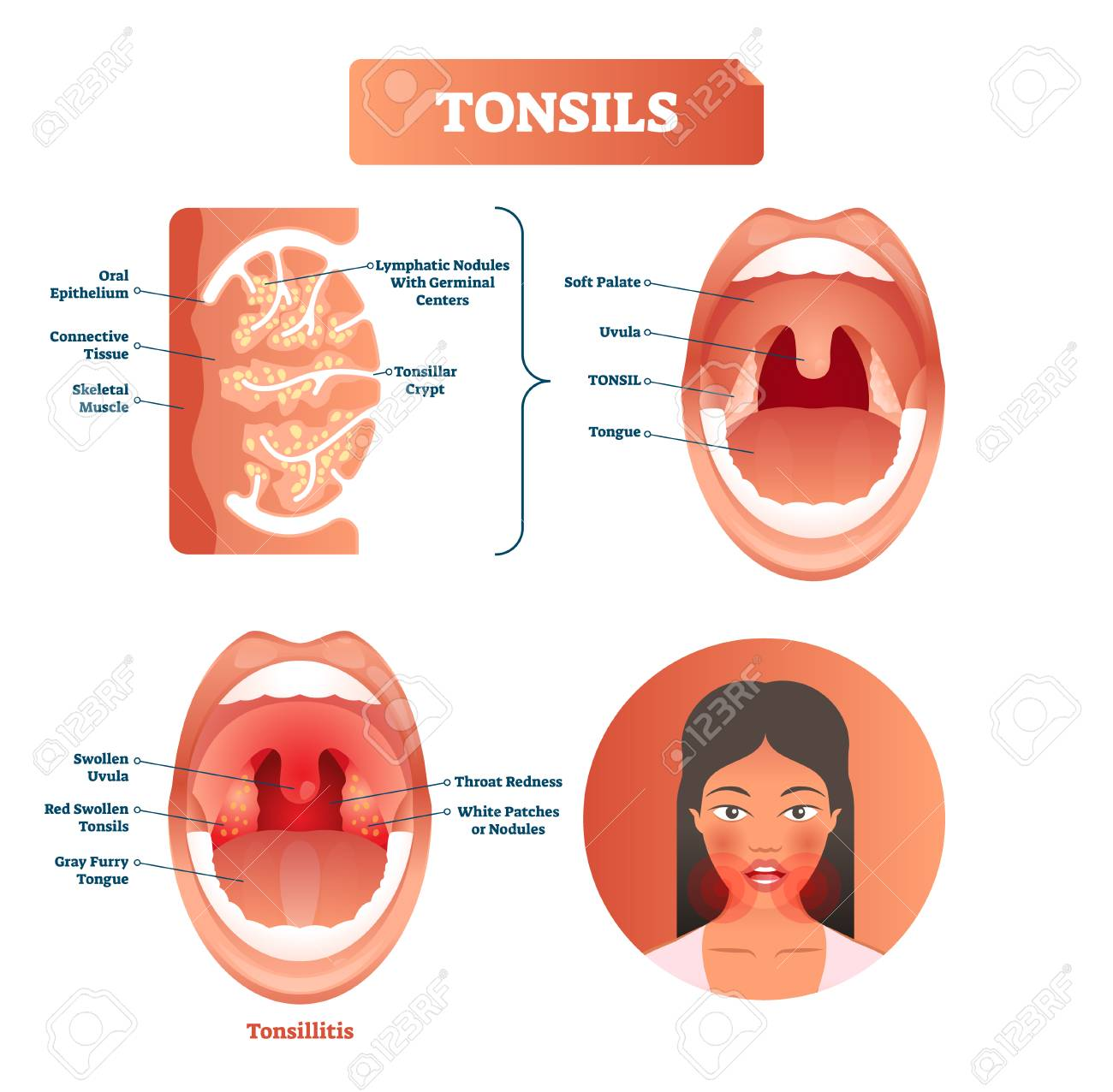 tonsillitis labeled structure diagram with swollen uvula, gray furry tongue,
