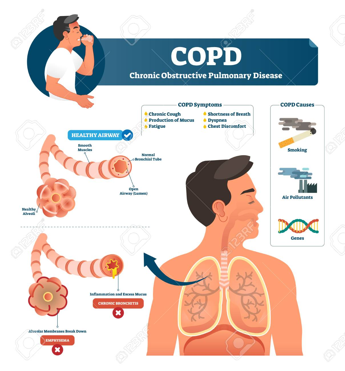 COPD vector illustration  Labeled chronic obstructive pulmonary