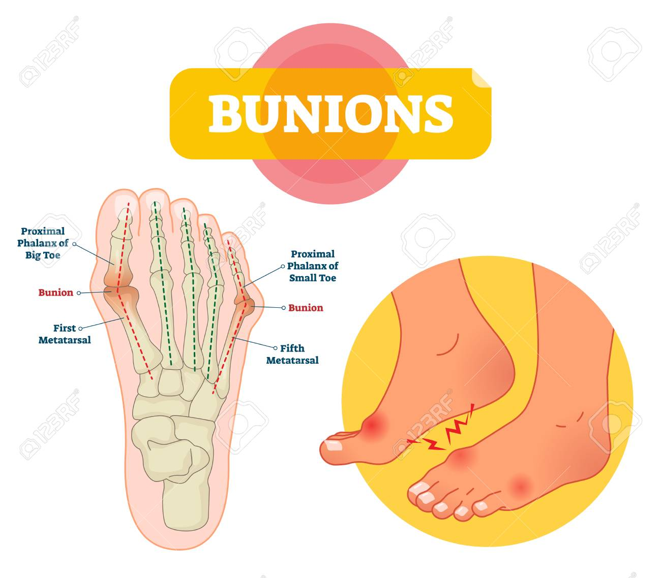 Bunions Vector Illustration Labeled Feet Bone Disorder Explanation Royalty Free Cliparts Vectors And Stock Illustration Image 123463607