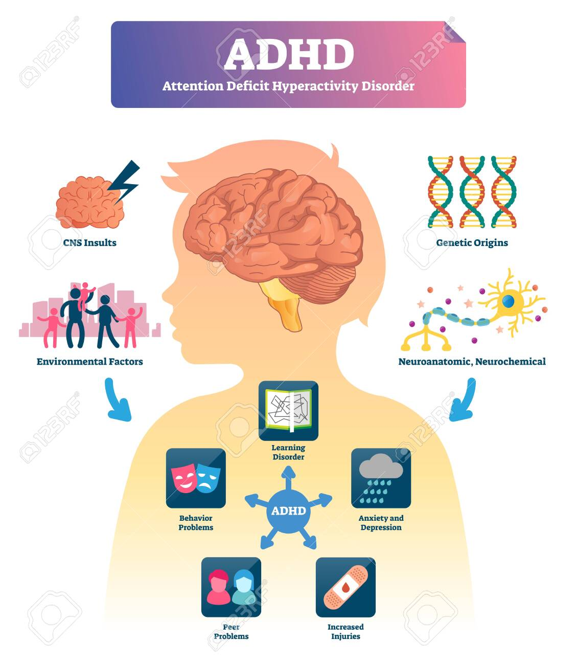 Adhd Behind Behavior >> Adhd Vector Illustration Labeled Attention Deficit Hyperactivity