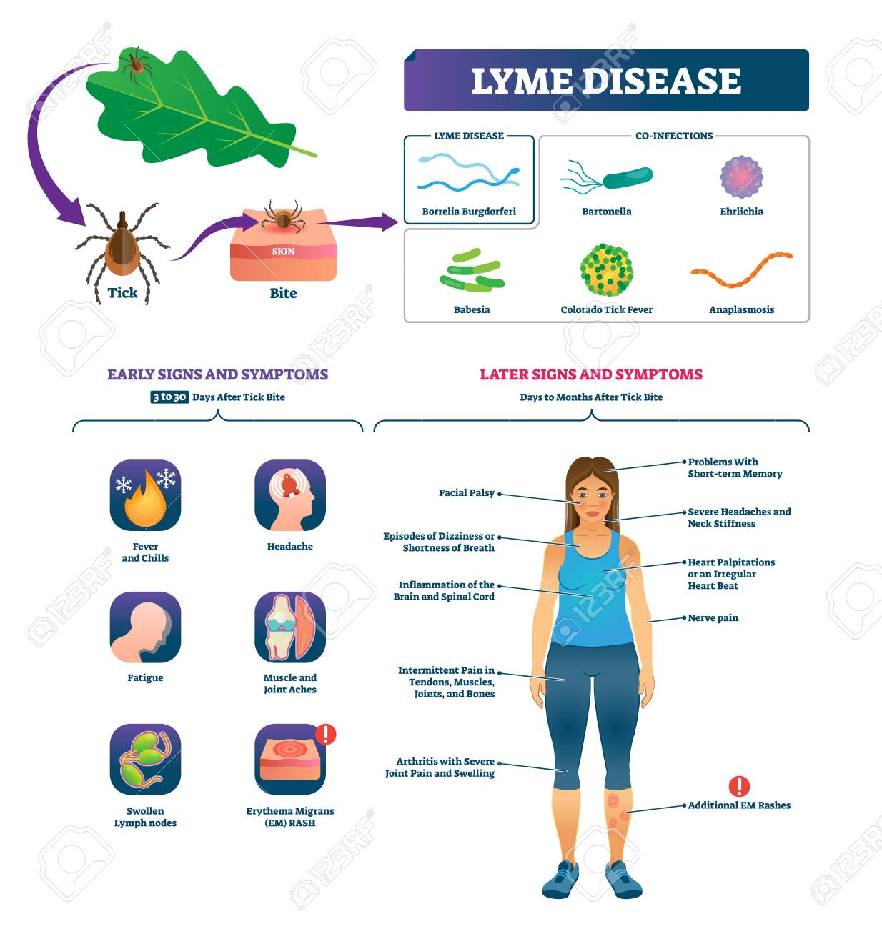 Lyme disease vector illustration. Labeled tick bite infection symptoms scheme. Educational collection with co-infections closeup and early or later signs. Vaccination to prevent epidemic diagnosis. - 121670915