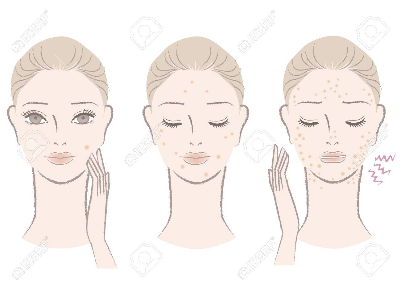 Beautiful woman frowning pimples, Skin trouble Isolated on white Cut out For other variation, check my portfolio - 15994631