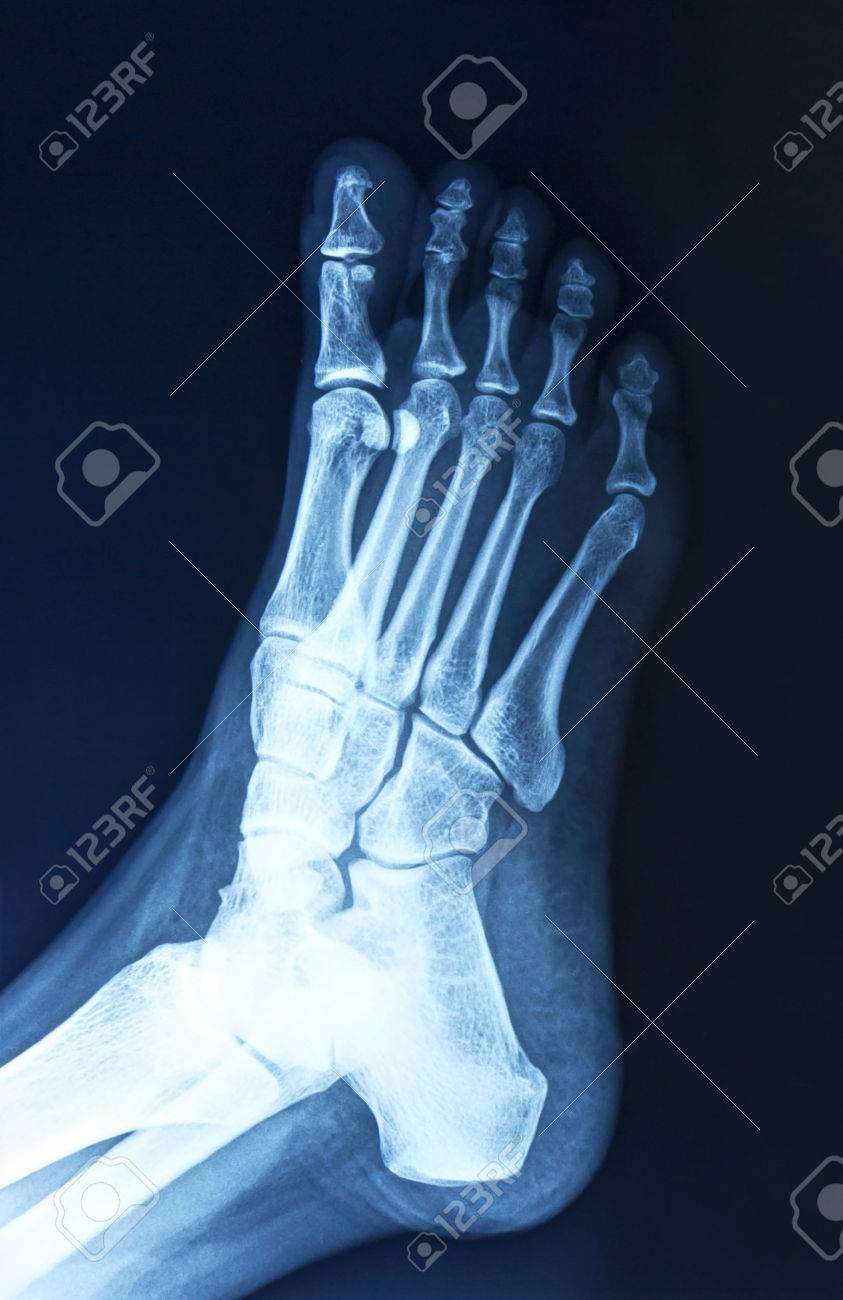 Film X Ray Normal Humans Foot Lateral Stock Photo Picture And