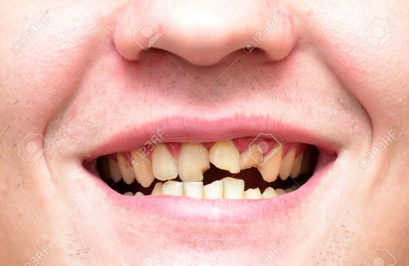 Jeune Homme Avec Une Dent Cassée Et Pourrie Banque Dimages Et