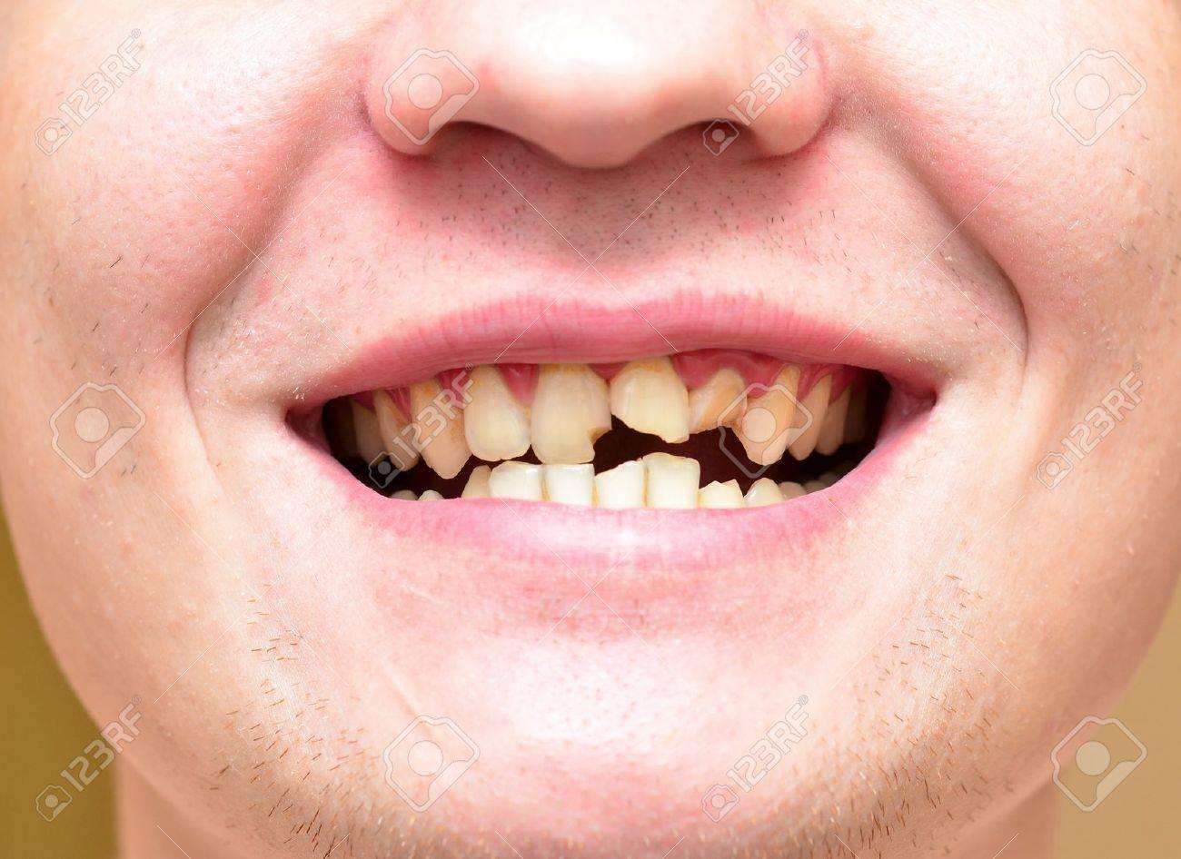 Приснилось что зуб поломала