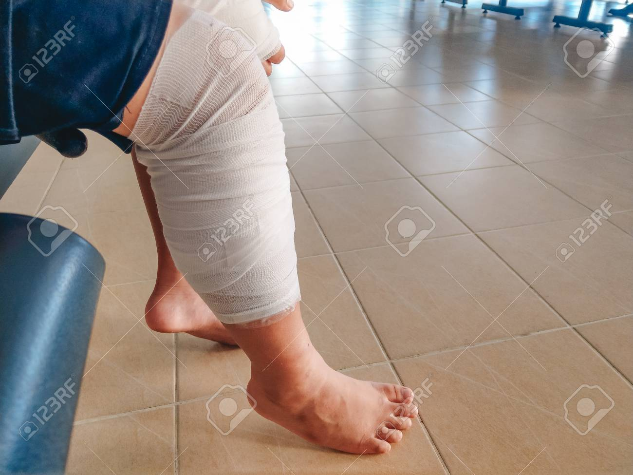elastic bandaj după excedent)