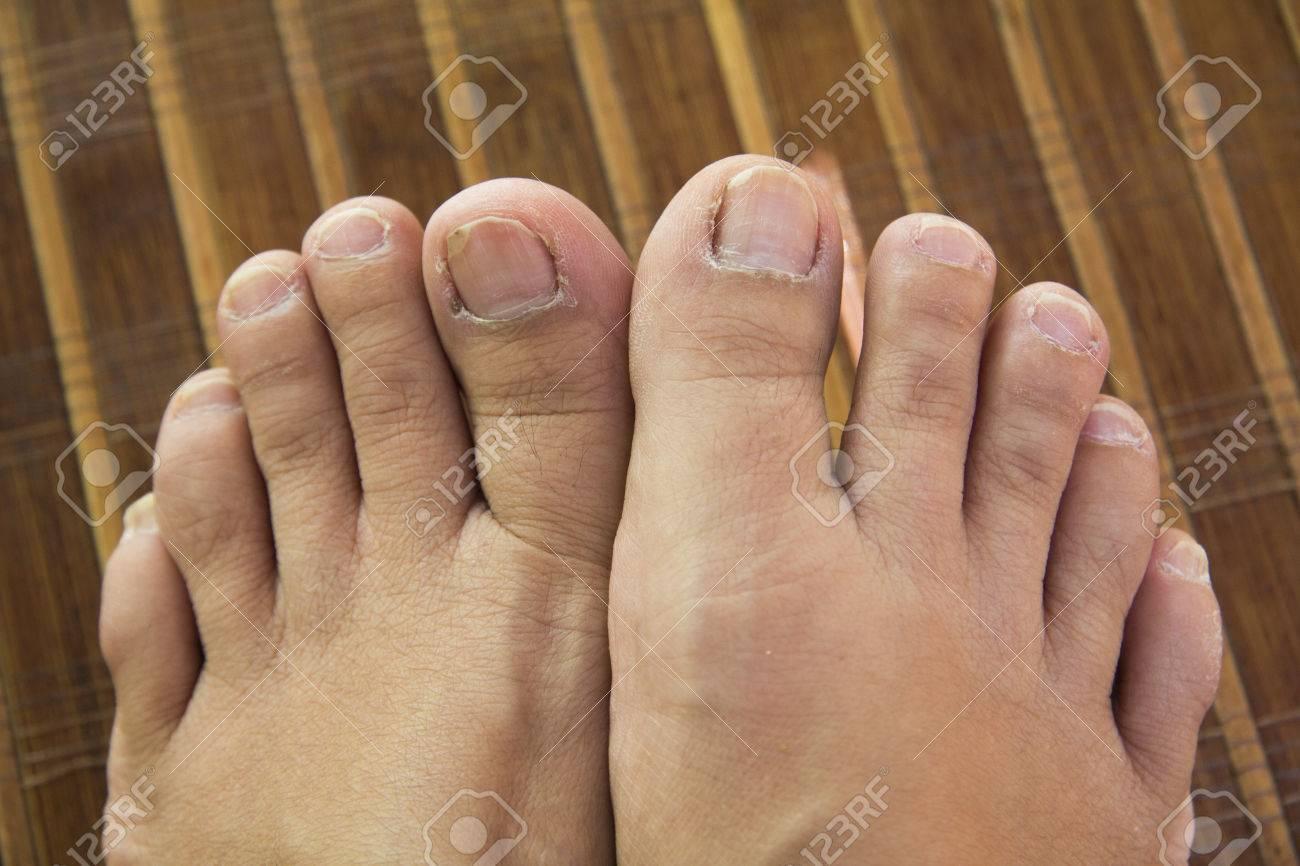 Feet Unhealthy Toenails Lay On A Mat Stock Photo
