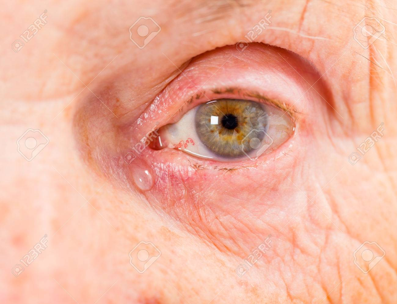 Close up photo of elderly woman eye Standard-Bild - 37849047