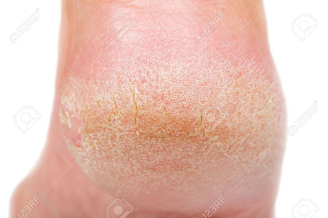 Close up photo of a person with dry skin on heel Standard-Bild - 44593731