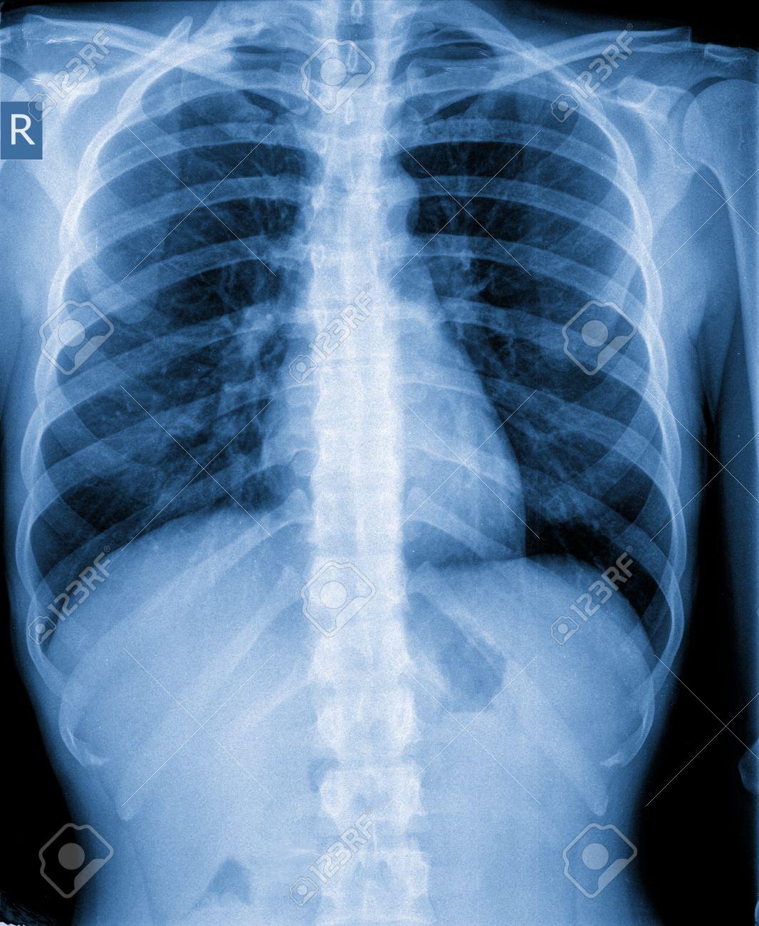 Röntgenbild, Brust, Lungenentzündung, Der Menschlichen Lunge ...
