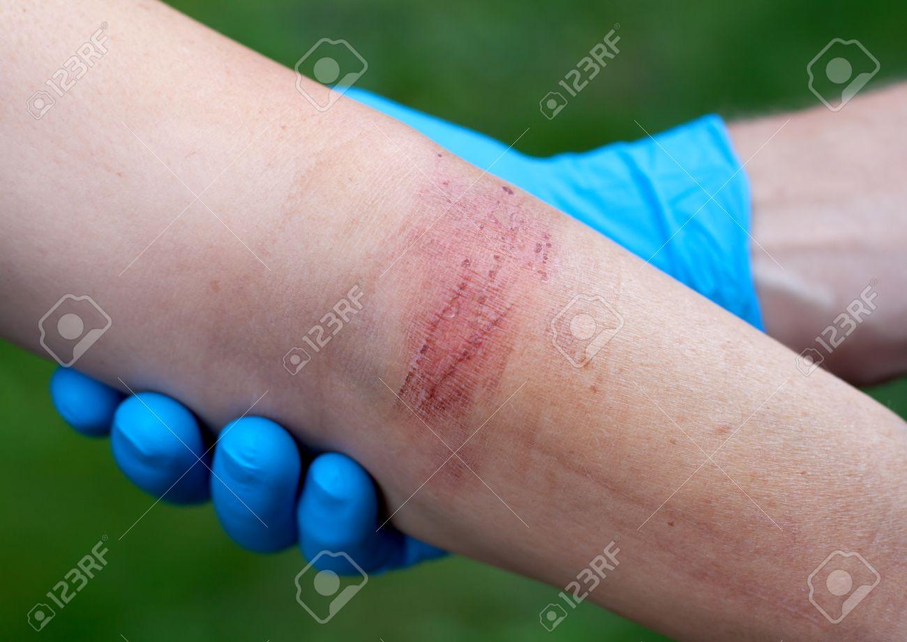 Doctor's hand healing a burned skin area - 32107954