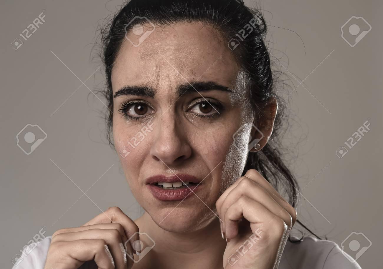 病 表情 うつ 顔 の