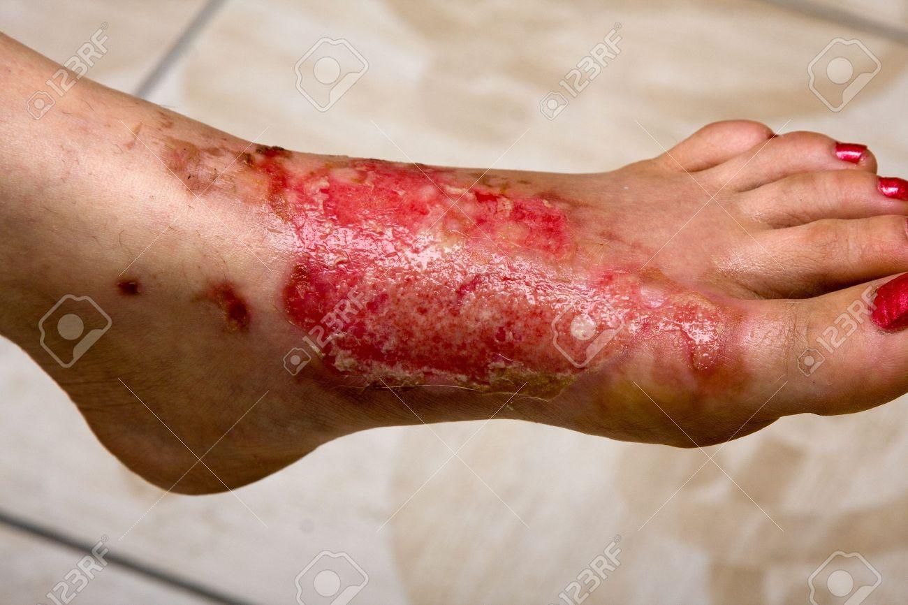 Severe burns in the women Stock Photo - 13403573